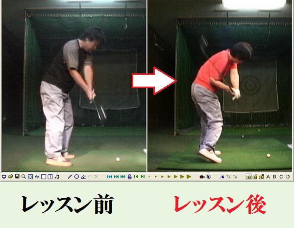 ダウンスイングで右脇があいてしまう動きの改善 レッスン前とレッスン後